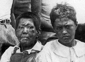 Boys with leprosy, c. 1900.